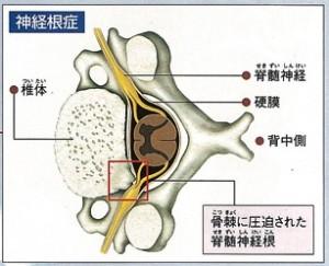 骨棘 神経圧迫